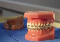 Clínica dental especializada en ortodoncias en Badajoz